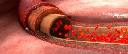 biotec_slide_blood_vessel_cutaway_t